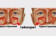 7 методів лікування двостороннього гаймориту – погоджуватися на прокол?