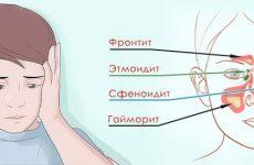 9 перших симптомів синусит у дітей – лікування і профілактика захворювання