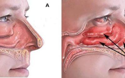 9 симптомів алергічного синуситу (риносинуситу) – як лікувати?