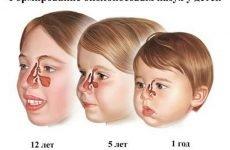 9 симптомів риносинуситу-у дітей і різні методи лікування