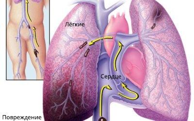 (ТЕЛА) Тромбоемболія гілок легеневої артерії – класифікація