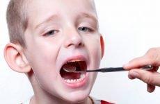 Аденоїди у дітей: симптоми і лікування без операції, найефективніші засоби