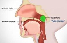 Аденоїди в носі у дитини: симптоми та ефективне лікування