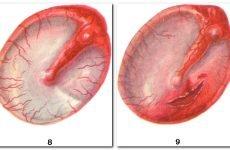 Аэроотит: причини, симптоми, лікування та профілактика
