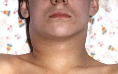 Ангіна Людвіга: симптоми, діагностика, лікування і наслідки