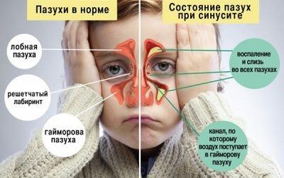 Антибіотики при гаймориті у дорослих і дітей: які краще, список