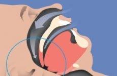 Апное (СОАС) лікування вдома та причини – 4 небезпечні наслідки