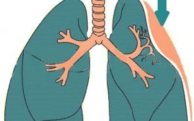 Ателектаз легені – 13 причин, симптоми, лікування та профілактика