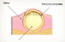 Атерома за вухом і на мочці вуха: причини, лікування, наслідки