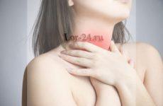 Атрофічний фарингіт – симптоми і лікування
