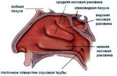 Атрофічний риніт (озена): симптоми і лікування у дорослих і дітей