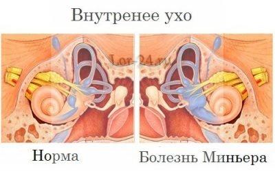 Хвороба Меньєра: причини, симптоми, лікування