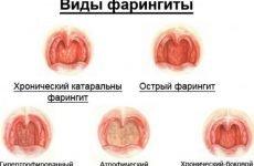 Хвороби горла та гортані: які бувають (список), симптоми і лікування