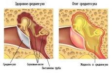 Болить вухо при вагітності: що робити і чим лікувати