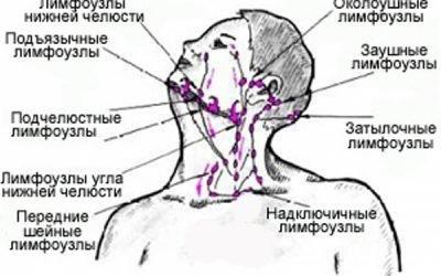 Болять лімфовузли на шиї: причини, що робити і як лікувати