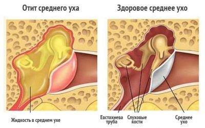 Бульозний (вірусний) отит: симптоми, лікування
