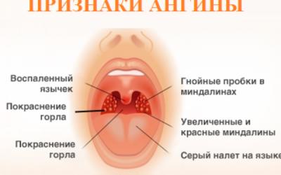 Чим відрізняється лакунарна ангіна і фолікулярна?