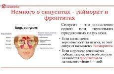 Чим відрізняється синусит і гайморит – різниця симптомів та лікування