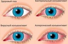 Сверблять очі і нежить, закладений ніс: причини і профілактика