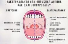 Що таке бактеріальна ангіна і як її відрізнити від вірусної?
