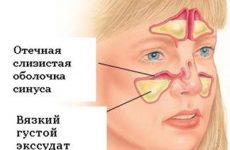 Що таке ексудативний гайморит – причини та особливості лікування