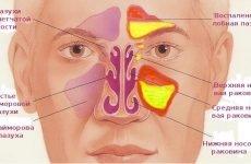 Що таке гайморит – 8 видів і правильне лікування, початкові симптоми