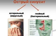 Що таке катаральний синусит (риносинусит) – 8 симптомів та лікування