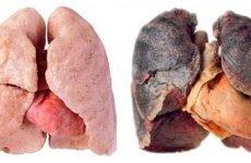 Що таке силікоз легень – 5 професій, де можна захворіти