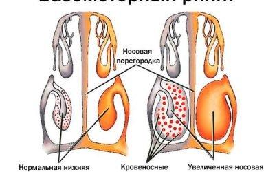 9 симптомів вазомоторного риніту – як лікувати у дорослих і дітей?