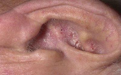 Дерматит вушної раковини: лікування народними та медичними засобами