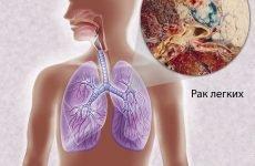 Діагностика раку легенів – 6 перших ознак і як розпізнати?
