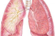 Діагностика туберкульозу у дорослих і у дітей – знімок (КТ, рентген, МРТ)