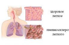 Дифузний пневмосклероз легень – що це таке, скільки живуть?