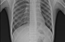 Дископодібний ателектаз легені – що це таке і 4 способи діагностики