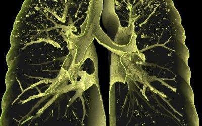 Дисемінований туберкульоз легень – 3 умови виникнення, фази