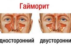Двосторонній гайморит (синуситу): симптоми і лікування у дорослих і дітей