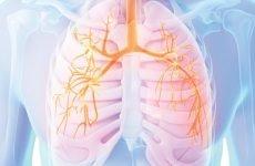 Дихальна недостатність (синдром) рестриктивна і хронічна