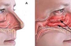 Ефективні способи зняття набряку слизової носа в залежності від його причини