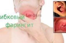 Фарингомикоз (грибковий або кандидозний фарингіт): симптоми і лікування