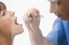 Фаринготрахеит – причини, симптоми і лікування