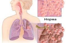 Фіброз і пневмофіброз легень: що це таке, як лікувати: прогноз життя