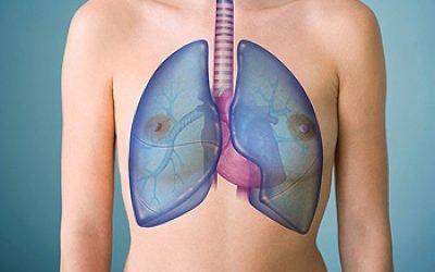Фіброз легенів – 7 видів (дифузний, лінійний, вогнищевий тощо) лікування