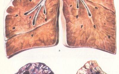 Фіброзно кавернозний туберкульоз легень: 5 симптомів і як лікувати?