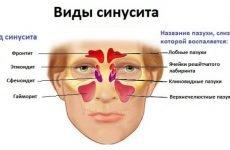 Фронтит: симптоми і лікування у дорослих, ліки і засоби