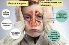 Гайморит у дітей: ознаки, симптоми і лікування
