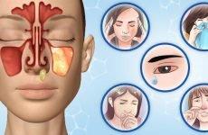 Гайморит у дорослих: причини, симптоми, лікування, прогноз