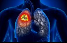 Гангрена легені – 4 стадії, лікування та діагностика хронічної форми