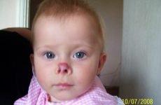 Гемангіома носа у дорослих та дітей: симптоми і лікування
