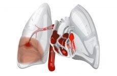 Геморагічний інфаркт легені: 4 наслідки, симптоми і прогноз