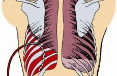 Гемоторакс (скупчення крові) – згорнувся і травматичний